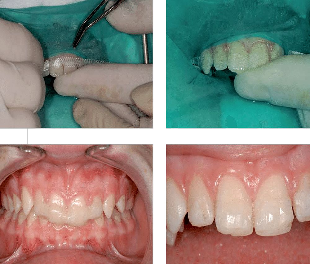 Rehabilitación Dental