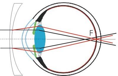 La correction de la myopie  - Les lunettes et les lentilles 7380acf58620