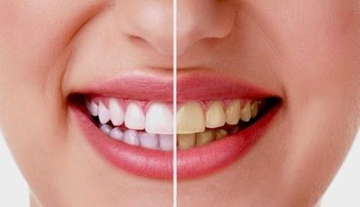 Cara Alami Mengatasi Gigi Kuning Dan Berkarang Informasiajib