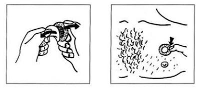 Cara Yang Benar Menggunakan Transdermal Patch