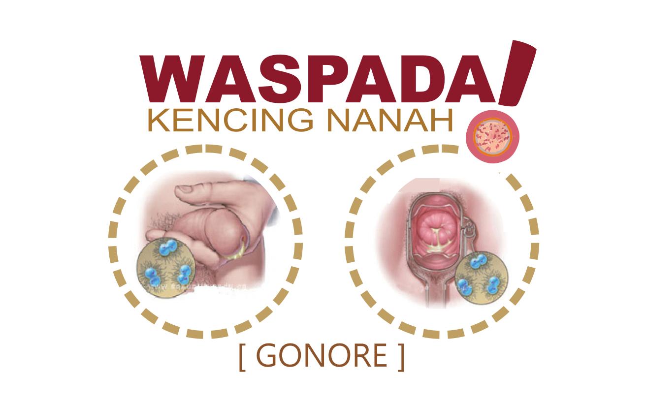 Apa itu penyakit Kencing Nanah ?