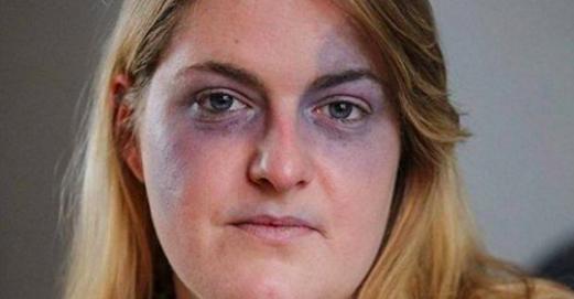 Cette femme accouche en urgence et pendant qu'on extrait son enfant par césarienne, elle agonise de douleur. Le pire arrive cependant 18 mois plus tard!