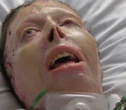 Burn victim attacked by ex-boyfriend dies after 52 surgeries