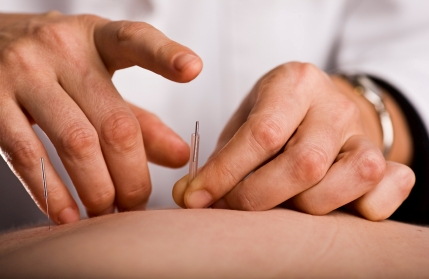 Does Medicare Cover Acupuncture 2016
