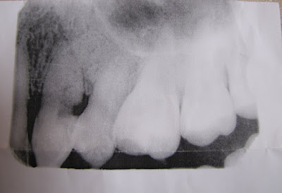 Dental Radiograph Cuspid