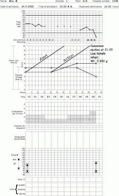 Partograf Normal dan Tidak Normal
