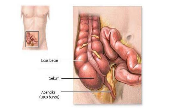 Posisi anatomi apendiks