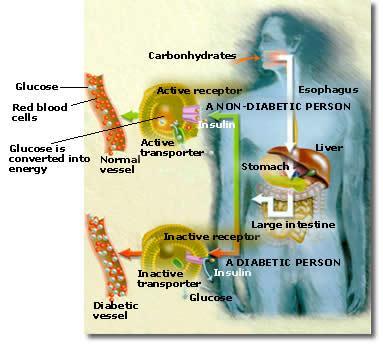 Glukosuria