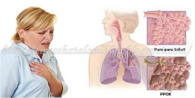 Pengobatan PPOK Herbal Paling Efektif