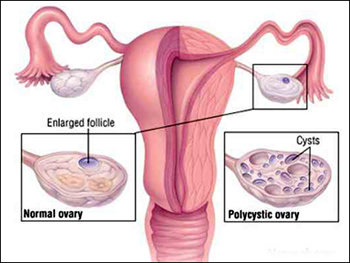 Ayurvedic Treatment for PCOS - Diet & Home Remedies - Dr