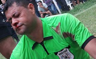 arbitros-futbol-agresion-capiateña