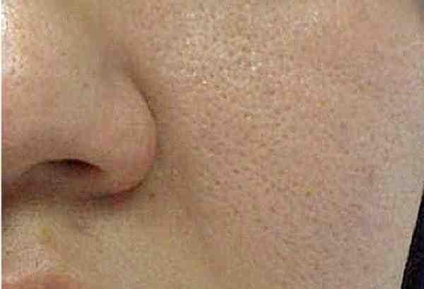 ماسك لغلق مسام الوجه