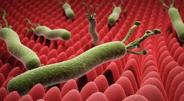 جرثومة المعدة،Helicobacter pylori،الأطعمة التي تقضي على جرثومة المعدة