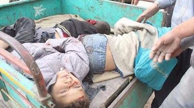 أطفال الغوطة