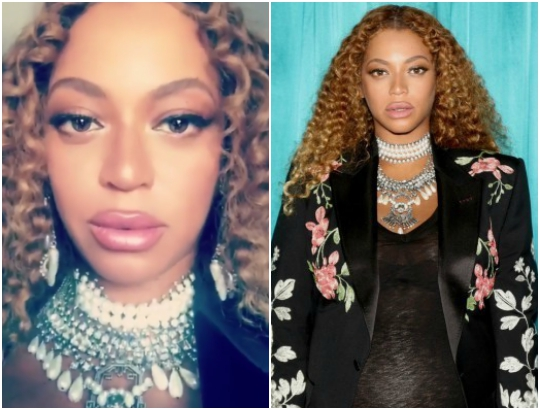 Beyonce's lips Change: Pregnancy Lips Or Lips Fillers ? (Photos)