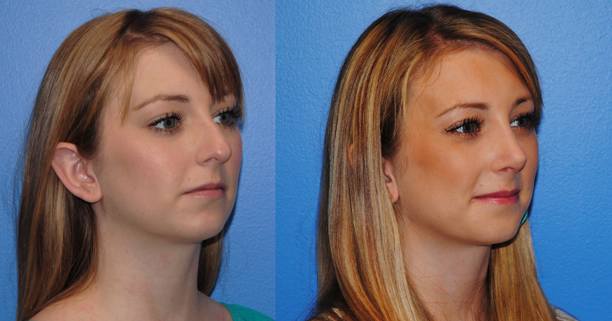 Rhinoplasty & Airway Reconstruction: Rib Graft Rhinoplasty