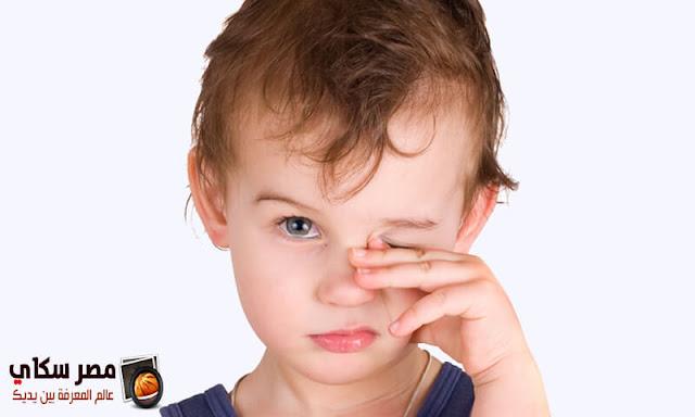 إلتهاب العين وأسبابه عند الأطفال ومتي يرجع الى الطبيب ؟