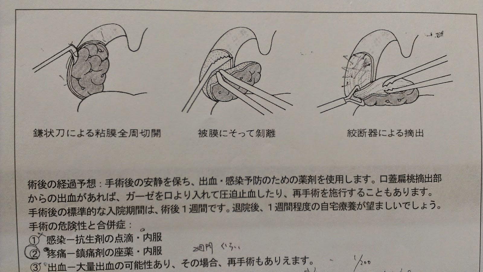 扁桃腺 切除 声