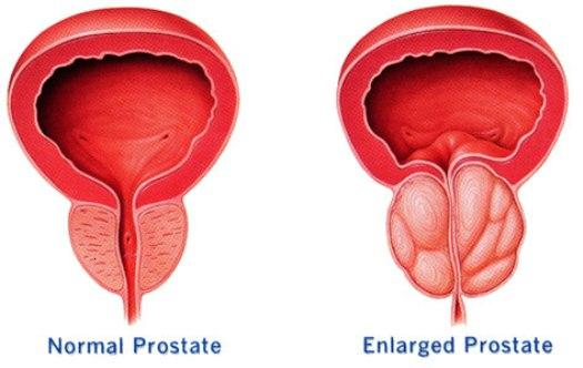 All You Need to Know About the Causes of Prostate Cancer
