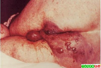 Clostridial myonecrosis (gas gangrene).