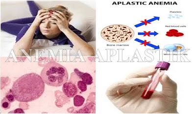 Pengobatan Alami Anemia Aplastik Tanpa Transfusi Darah