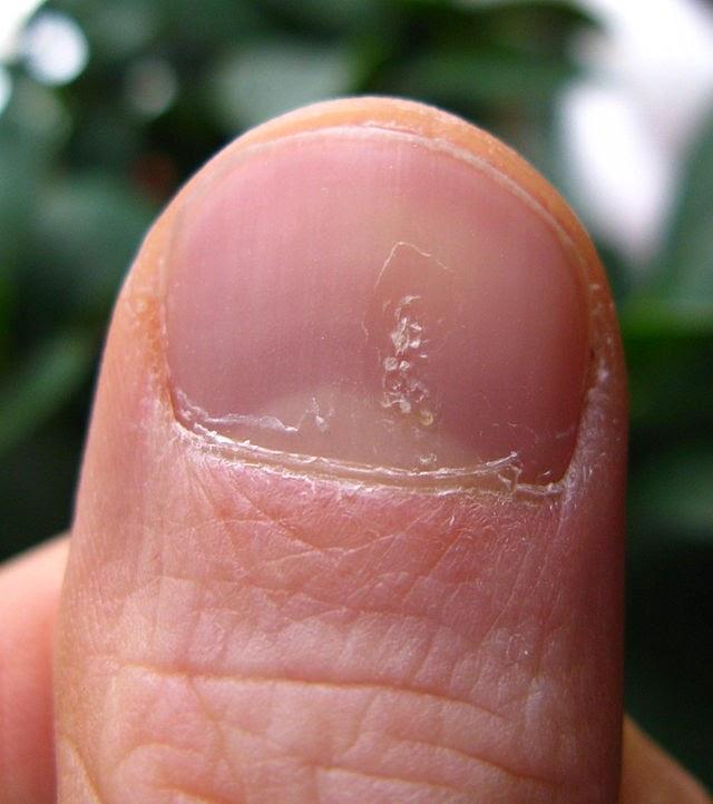 penyebab psoriasis