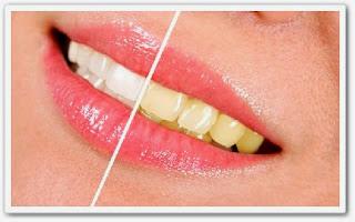 Как отбелить зубы. Народные средства видео онлайн