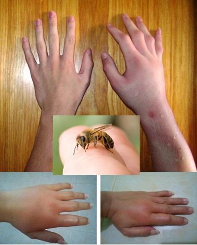 Cara Menghilangkan Bengkak Bekas Sengatan Lebah Paling Ampuh