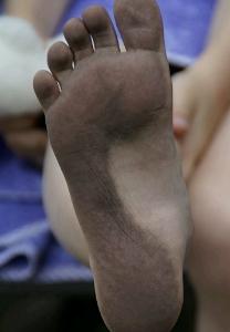 kulit kaki pecah