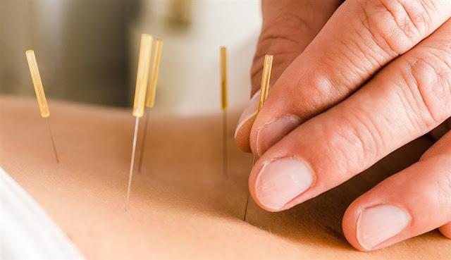 Akupunktur Uygularken Dikkat Edilmesi Gereken Noktalar
