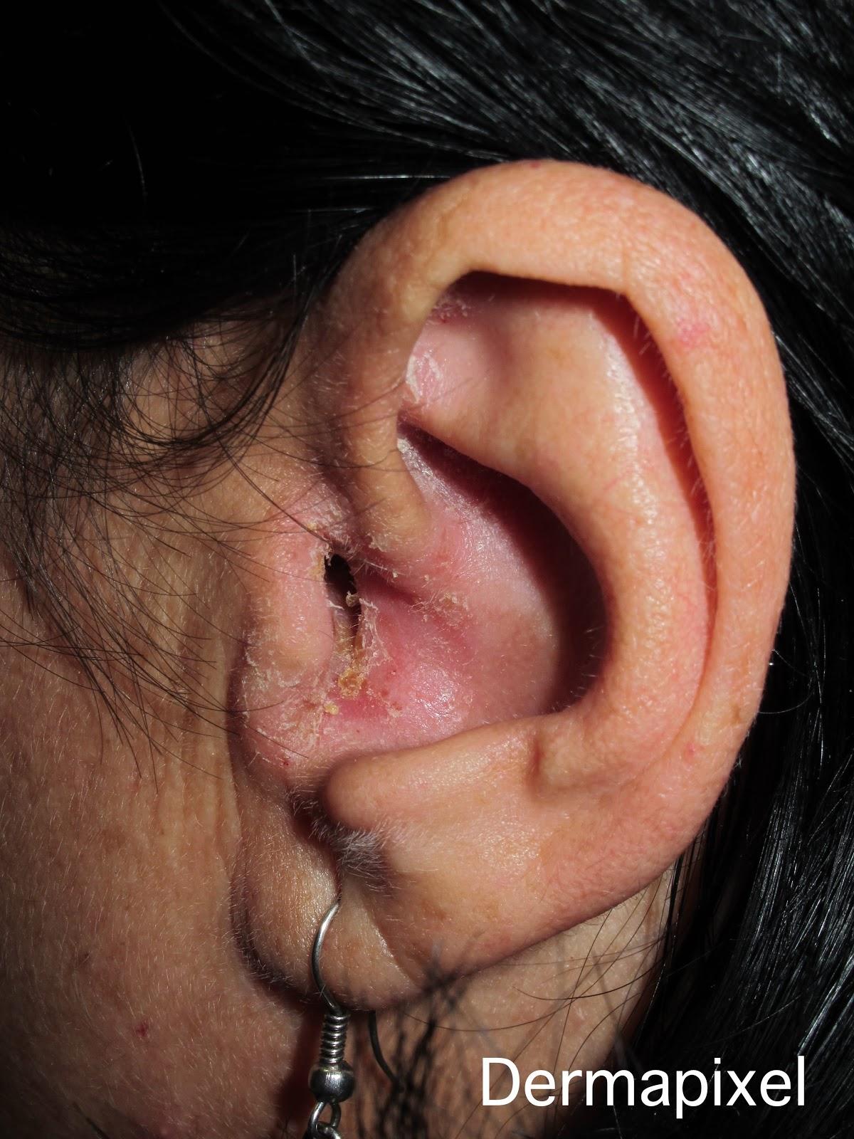 Picor de oídos