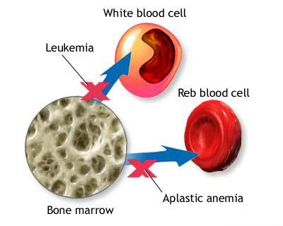 Aplastic Anemia, Diet, Bone Marrow, Read blood cell