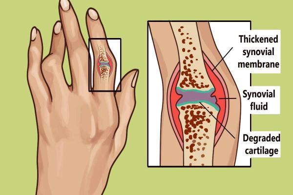 Encontrar información sobre este 3000 años de antigüedad Técnica para el Tratamiento de la Artritis Reumatoide y la inflamación