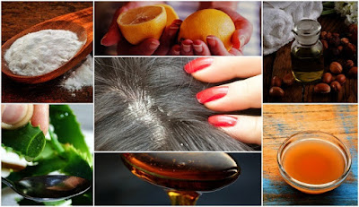 7 Home Remedies to Get Rid of Dandruff Easily