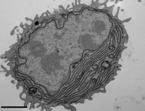 An electron microscopy image shows an antibody-secreting plasma cell generated using antigen- and CpG-coated nanoparticles.