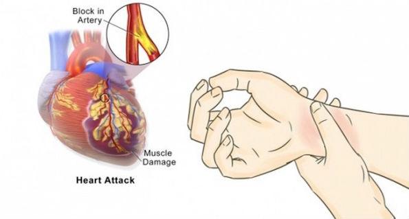 Inilah 5 Cara Simpel Cegah Serangan Jantung Hingga 90 Persen