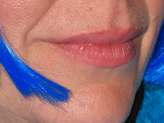 nasolabial folds and laugh lines