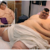World's Heaviest Man To Undergo Surgery Again To Save His Life. Photos