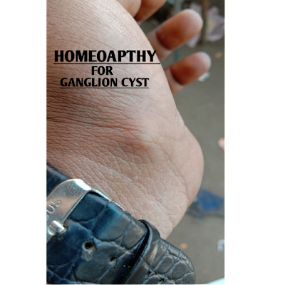 HOMEOPATHY FOR GANGLION CYST - ALL ABOUT HOMEOPATHY