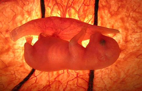 animal embryo - photo #10