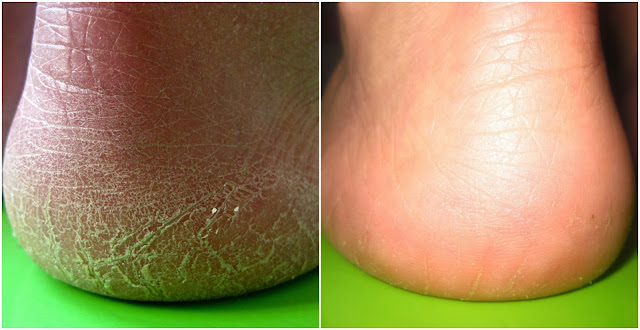The Fast Ways To Make Your Feet Soft and remove Calluses