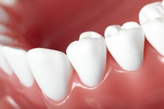 Comment nettoyer en profondeur vos dents