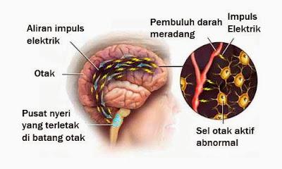 Anatomi migrain