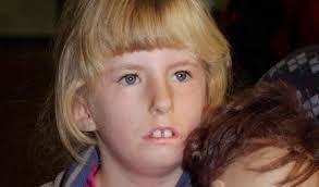 Síndrome de Moebius é um distúrbio neurológico