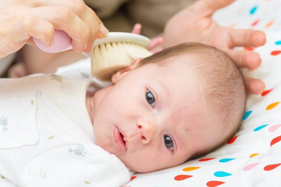 Bebeklerde konak, Bebeklerde konak ne zaman geçer?, Bebeklerin kafasındaki konak nasıl geçer?, GE, Konak belirtileri, Konak neden oluşur?, Saç derisinde pullanma, Yenidoğan konak,