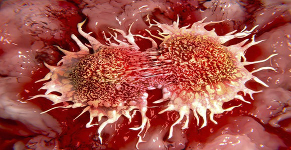 WHY IS THIS HIDDEN FROM THE PUBLIC: Top 10 Causes of Cancer That We Use Daily!