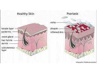 Obat Kulit Psoriasis, Cara Mengatasi Kulit Bersisik Dan Gatal 100% Aman, Efektif Dan Cepat Sampai Tuntas