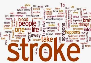 Gejala stroke ringan yang biasa di ketahui