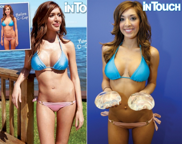 Breast implants a cup to d cup