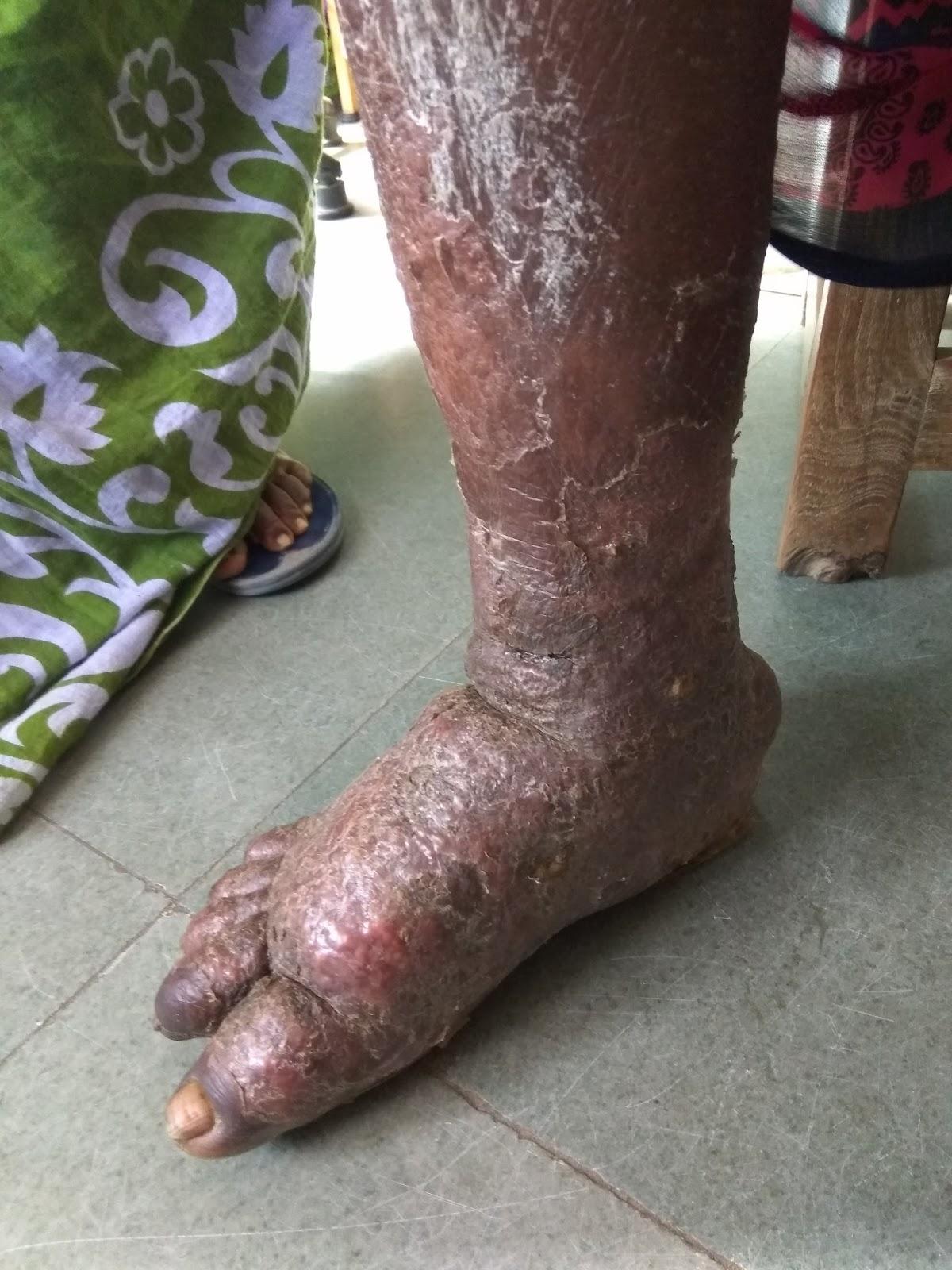 Elephantiasis of Leg | World Surgery Forum  Elephantiasis o...